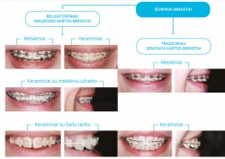 Tiesesni dantys