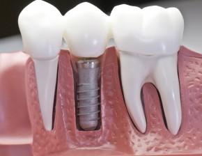 Implantuojanti klinika